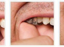 Aparat słuchowy na zębach